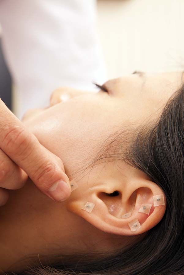 ear acupuncture seeds